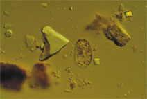Protozoa feed on bacteria